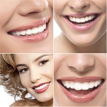 gouttière dents blanches